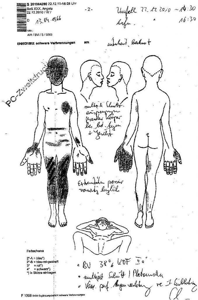 Skizze aus dem KH Boberg